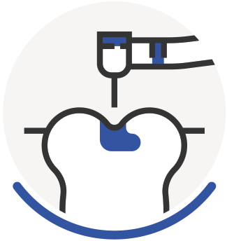 Periodontal Disease - Icon 7