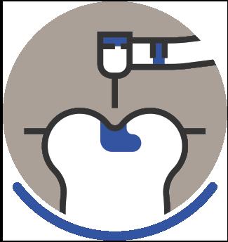 Periodontal Disease - Icon 7
