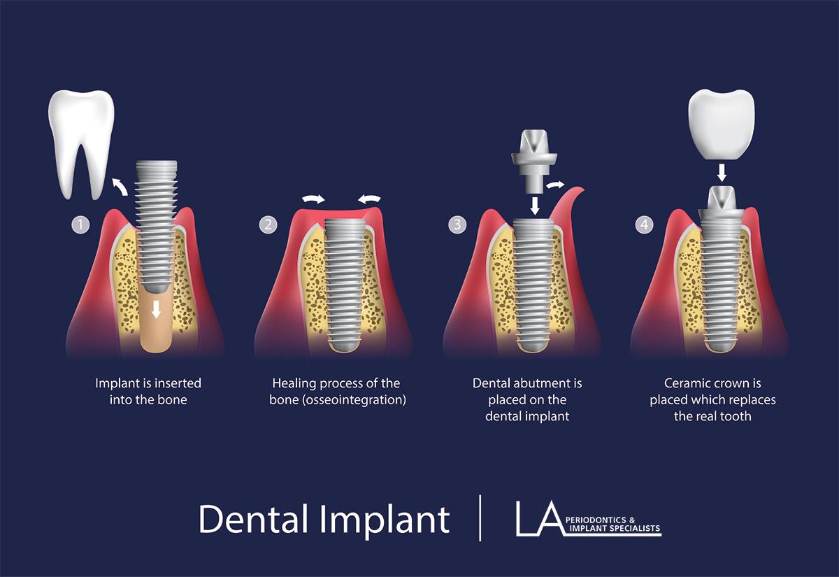 Dental Implant Illustration - Dental Implants Los Angeles