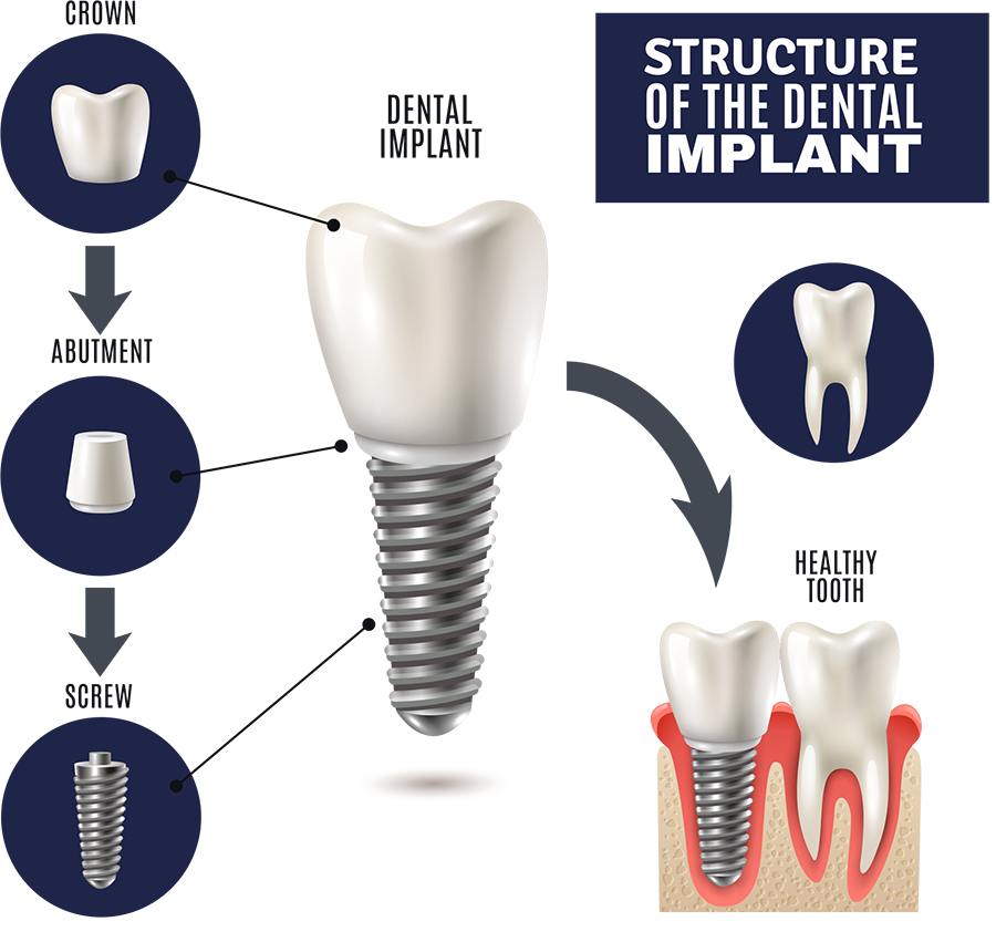 Structure of the Dental Implant - Brentwood Dental Implants