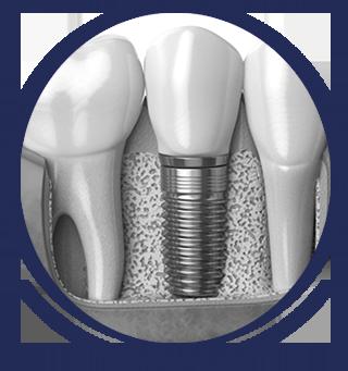 Dental Bone Graft Cose