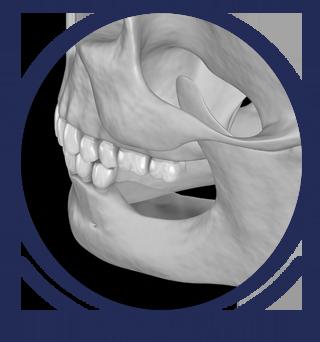 Dental Bone Graft Procedure - Brentwood Periodontist