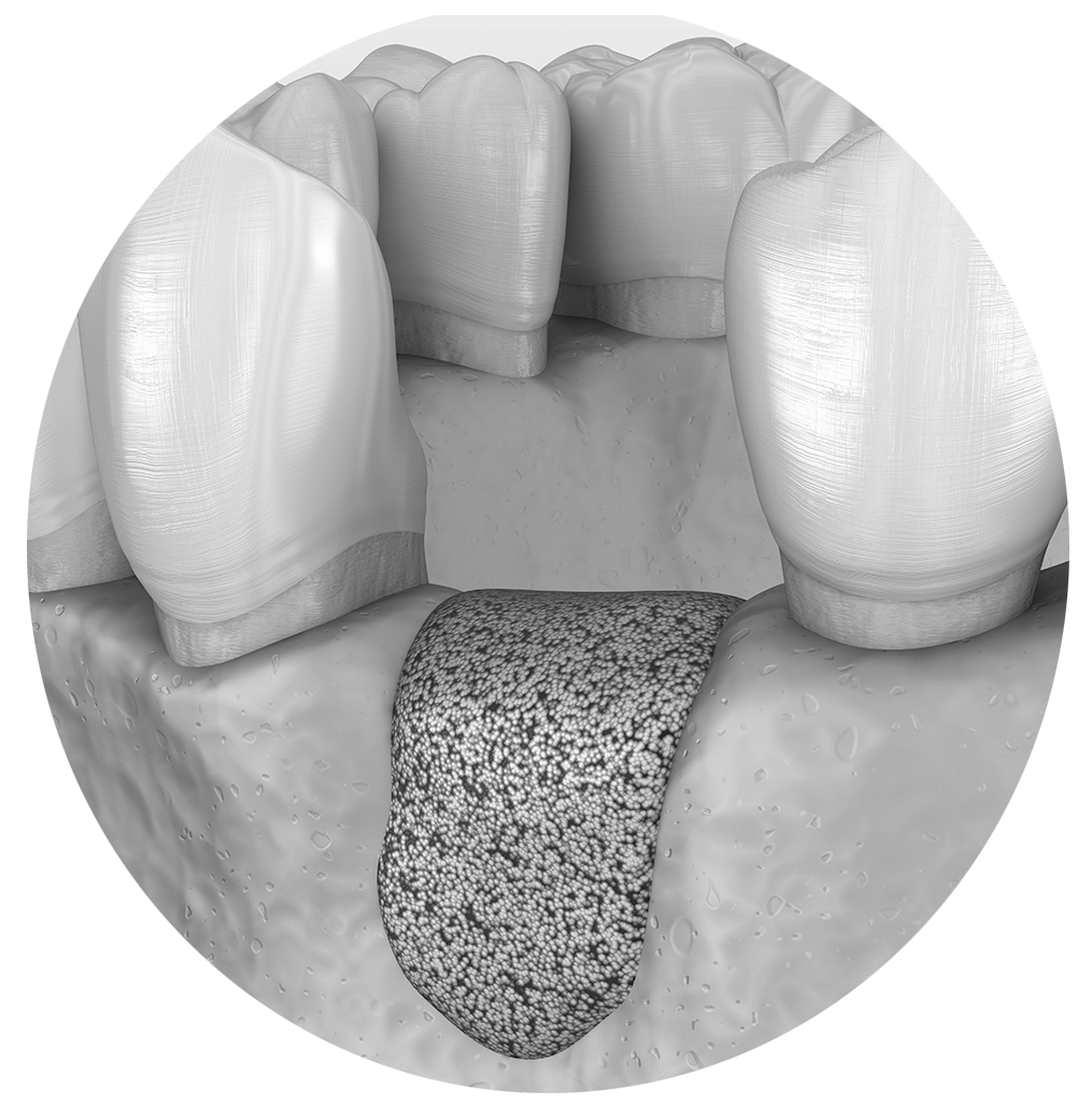 Socket Preservation dental bone graft procedure